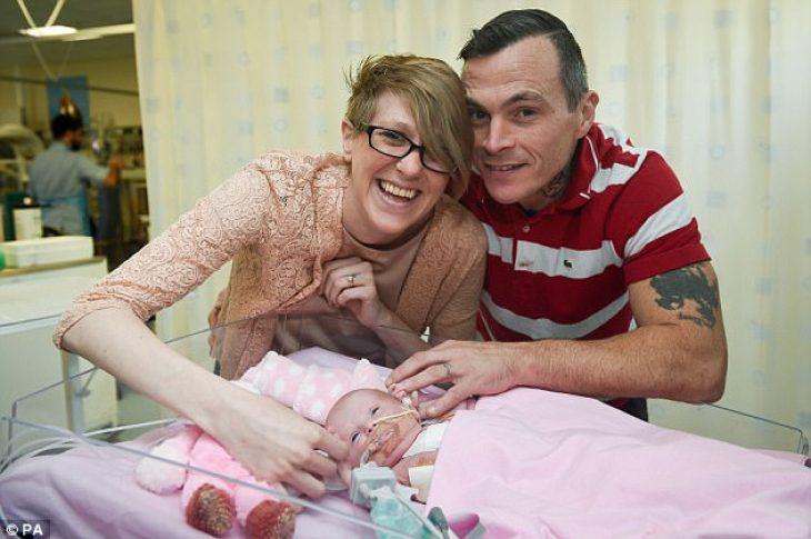 Πρόωρο μωρό γεννήθηκε με την καρδιά του έξω και επιβίωσε