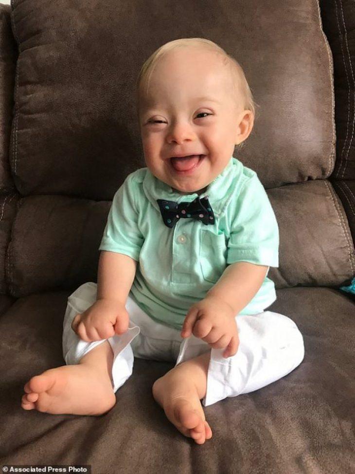 Μωρό με Σύνδρομο Down: Το γελαστό μωρό πρεσβευτής παιδικών τροφών