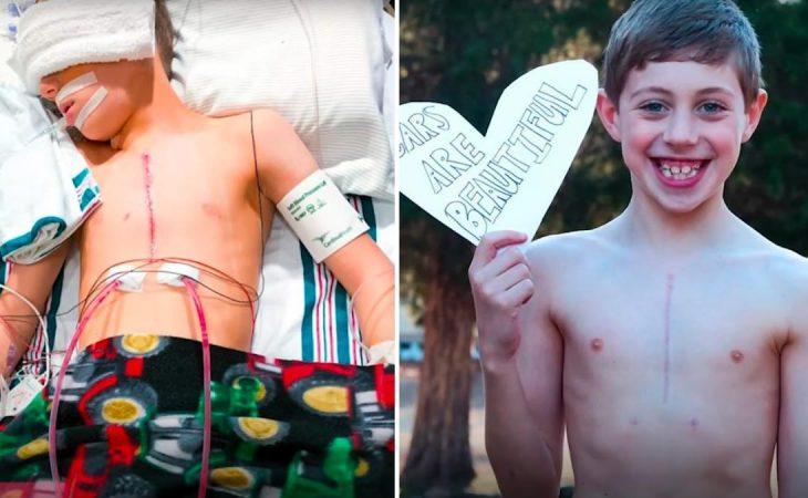 Πρωτοποριακή εγχείρηση: Έσωσε παιδί που ήταν καταδικασμένο