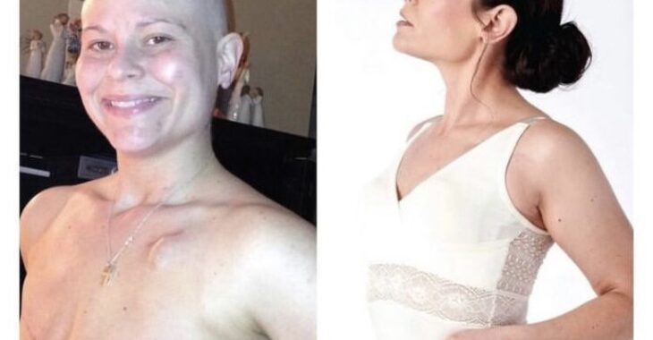 Νικήτρια καρκίνου: Σήμερα είμαι 8 χρόνια ελεύθερη καρκίνου