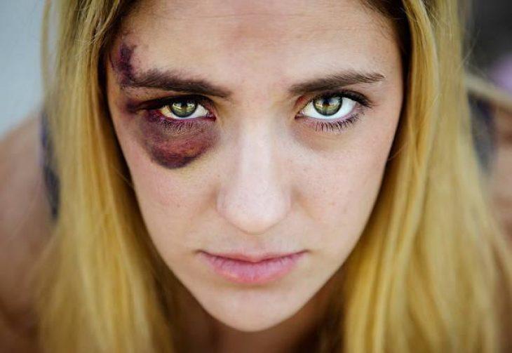 Ερώτημα: Αν βλέπατε την αδερφή σας ή την κόρη σας με μαυρισμένο μάτι από τον γαμπρό… τι θα κάνατε;