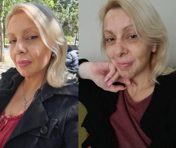 Αληθινή ιστορία: Πάλευα με λεύκη και καρκίνο ενώ μεγάλωνα μόνη 4 παιδιά. Ώσπου έβγαλα τα «σκουπίδια» από τη ζωή μου
