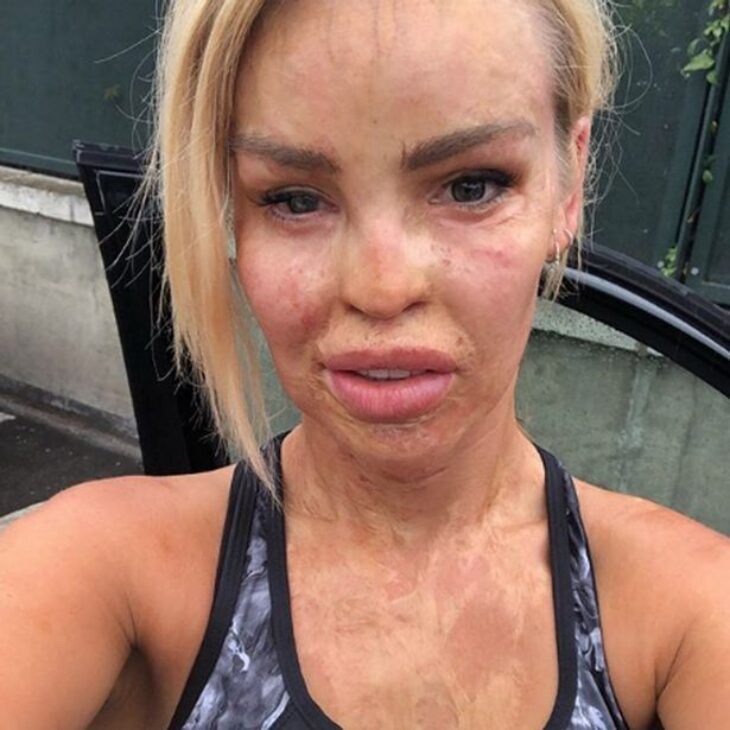 Οι ομοιότητες του «Γολγοθά» της Ιωάννας: Η επίθεση με οξύ στο μοντέλο από την Αγγλία Κέιτι Πάιπερ