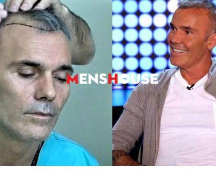 Οι 5 διάσημοι Έλληνες που τόλμησαν να κάνουν εμφύτευση μαλλιών