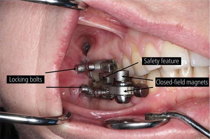 Νέα συσκευή για απώλεια βάρους εμποδίζει το στόμα να ανοίγει πάνω από 2 χιλιοστά